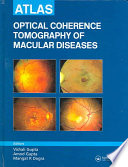 Atlas Of Optical Coherence Tomography Of Macular Diseases Book PDF