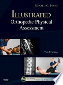 """Illustrated Orthopedic Physical Assessment E-Book"" by Ronald C. Evans"