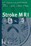 Stroke MRI