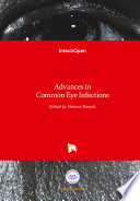 Advances in Common Eye Infections