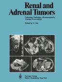 Pdf Renal and Adrenal Tumors Telecharger