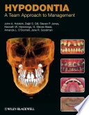 Hypodontia  : A Team Approach to Management