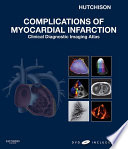 Complications Of Myocardial Infarction
