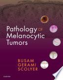 Pathology of Melanocytic Tumors E Book