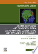 Brain Embryology and the Cause of Congenital Malformations, An Issue of Neuroimaging Clinics of North America, ebook