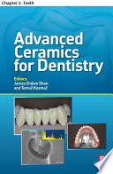 Advanced Ceramics for Dentistry