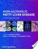 Non Alcoholic Fatty Liver Disease