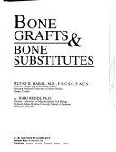 Bone Grafts   Bone Substitutes