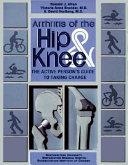 Arthritis of the Hip & Knee