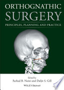 Orthognathic Surgery Book