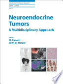 Neuroendocrine Tumors  A Multidisciplinary Approach