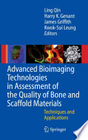 Advanced Bioimaging Technologies in Assessment of the Quality of Bone and Scaffold Materials