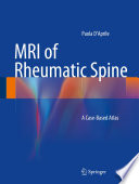 Mri Of Rheumatic Spine Book PDF