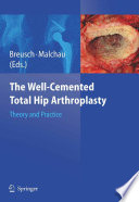 The Well-Cemented Total Hip Arthroplasty