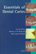 Cover of Essentials of Dental Caries