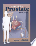 Atlas Of The Prostate Book PDF