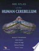 MRI Atlas of the Human Cerebellum Book
