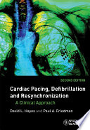 Cardiac Pacing  Defibrillation and Resynchronization