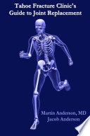 Tahoe Fracture Clinic s Guide to Joint Replacement Book