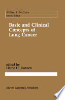 Basic And Clinical Concepts Of Lung Cancer Book PDF