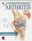 Understanding Arthritis Book PDF