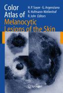 Color Atlas of Melanocytic Lesions of the Skin [Pdf/ePub] eBook