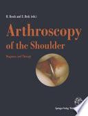 Arthroscopy of the Shoulder