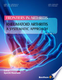 Rheumatoid Arthritis  A systematic Approach