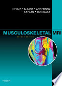"""Musculoskeletal MRI E-Book"" by Clyde A. Helms, Nancy M. Major, Mark W. Anderson, Phoebe Kaplan, Robert Dussault"