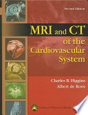 Mri And Ct Of The Cardiovascular System Book PDF