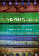 Scars and Wounds Pdf/ePub eBook