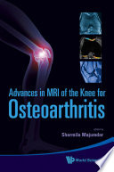 Advances in MRI of the Knee for Osteoarthritis