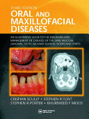 Oral and Maxillofacial Diseases