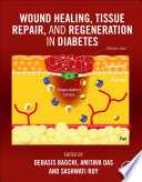 Wound Healing, Tissue Repair and Regeneration in Diabetes