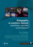 Échographie en anesthésie régionale (2e édition enrichie)