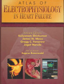 Atlas of Electrophysiology in Heart Failure