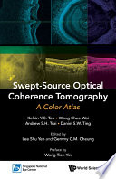 Swept-Source Optical Coherence Tomography