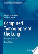 Computed Tomography of the Lung
