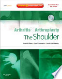 Arthritis and Arthroplasty