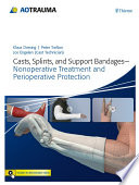 Casts  Splints  and Support Bandages