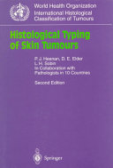Histological Typing of Skin Tumours
