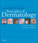 Lookingbill and Marks  Principles of Dermatology E Book