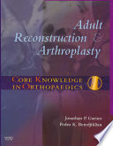 Adult Reconstruction and Arthroplasty
