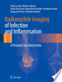 Radionuclide Imaging of Infection and Inflammation
