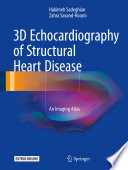 3D Echocardiography of Structural Heart Disease Book
