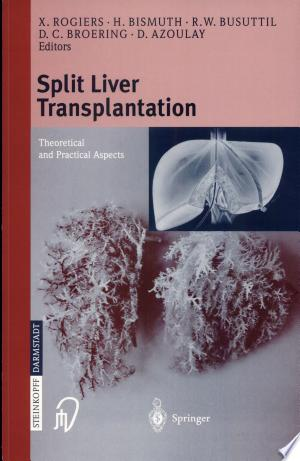 Download Split liver transplantation Free Books - Dlebooks.net