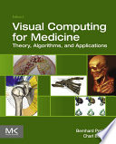 Visual Computing for Medicine