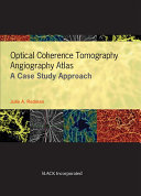 Optical Coherence Tomography Angiography Atlas Book PDF