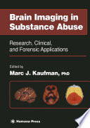 Brain Imaging in Substance Abuse
