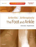 Arthritis   Arthroplasty